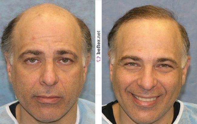 Фото волосся до і після пересадки