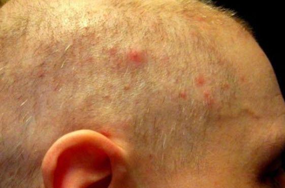 Герпес на голові в волоссі: позбавляємося від висипу