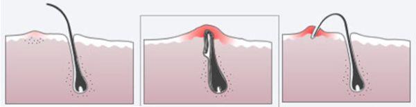 Як видалити врослий волосся: 3 ефективні методи вирішення проблеми