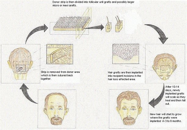 Клонування волосся - міф чи реальність