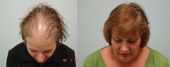 Методи пересадки волосся при операціях