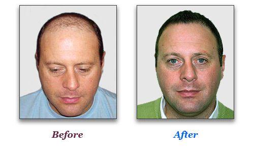 Методи пересадки волосся