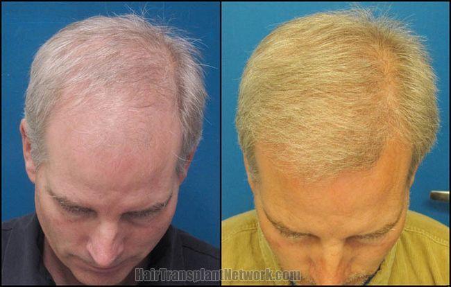 Відгуки про пересадки волосся