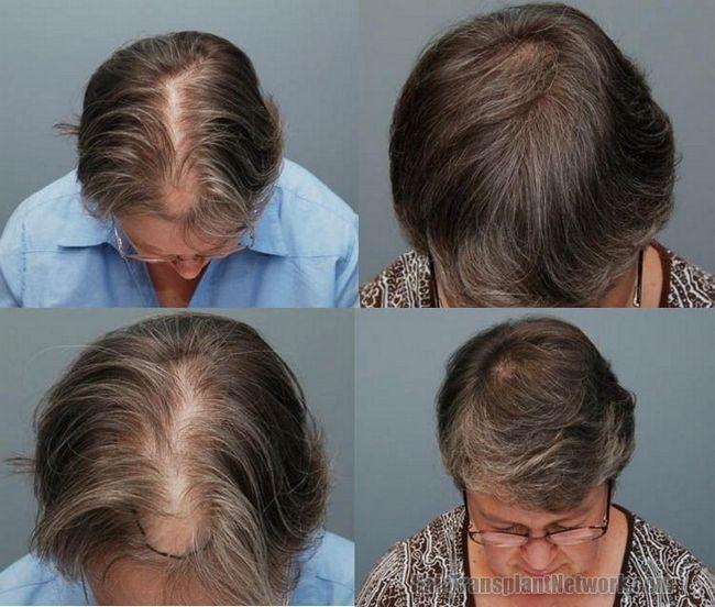 Пересадка волосся: методи і ціна