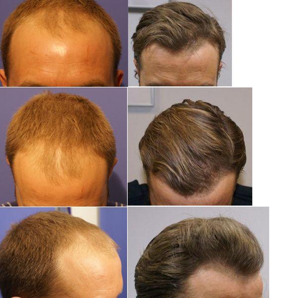 Пересадка волосся: опис методів