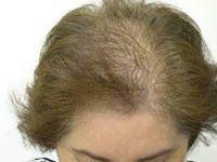 Пересадка волосся у жінок